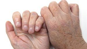 После работы на грядках, или сохраним красоту своих рук!